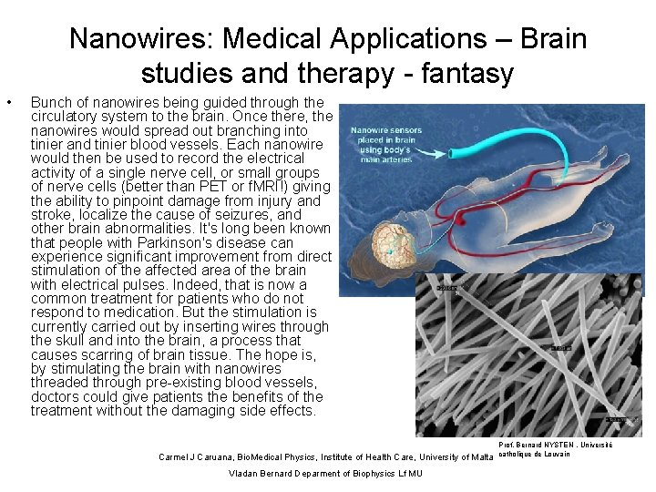 Nanowires: Medical Applications – Brain studies and therapy - fantasy • Bunch of nanowires