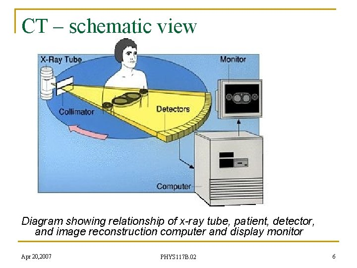 CT – schematic view Diagram showing relationship of x-ray tube, patient, detector, and image