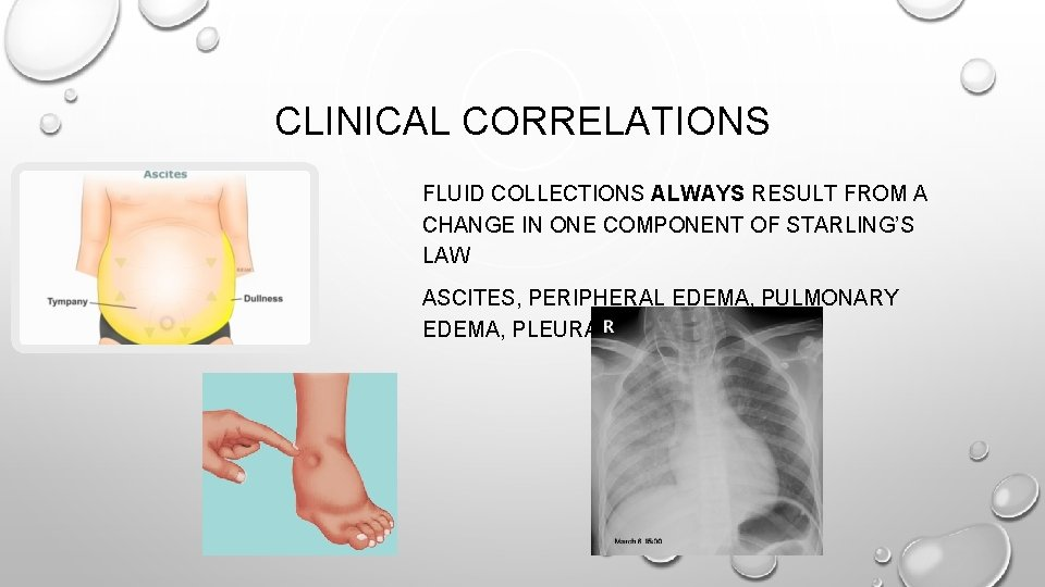 CLINICAL CORRELATIONS FLUID COLLECTIONS ALWAYS RESULT FROM A CHANGE IN ONE COMPONENT OF STARLING'S