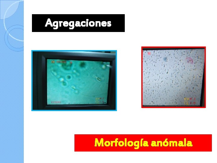 Agregaciones Morfología anómala