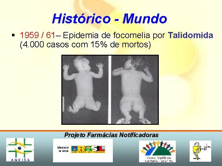 Histórico - Mundo § 1959 / 61– Epidemia de focomelia por Talidomida (4. 000