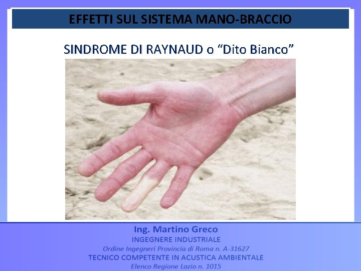 """EFFETTI SUL SISTEMA MANO-BRACCIO SINDROME DI RAYNAUD o """"Dito Bianco"""""""