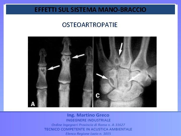 EFFETTI SUL SISTEMA MANO-BRACCIO OSTEOARTROPATIE