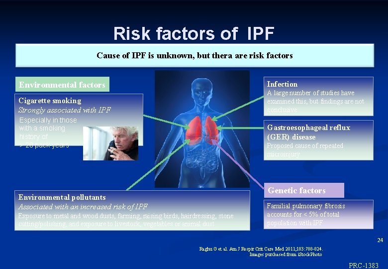 Risk factors of IPF Cause of IPF is unknown, but thera are risk factors