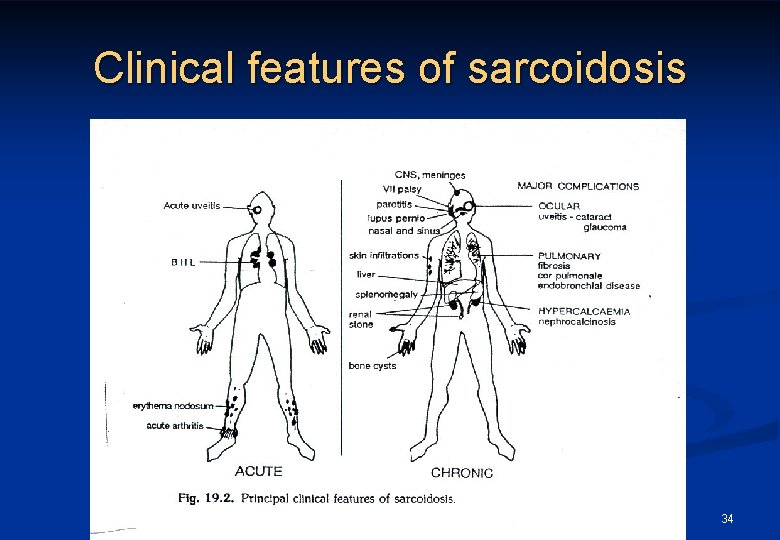Clinical features of sarcoidosis 34