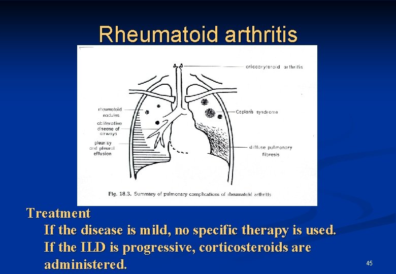 Rheumatoid arthritis Treatment If the disease is mild, no specific therapy is used. If