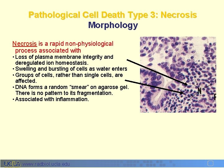 Pathological Cell Death Type 3: Necrosis Morphology Necrosis is a rapid non-physiological process associated