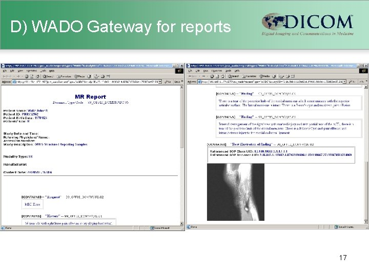 D) WADO Gateway for reports 17