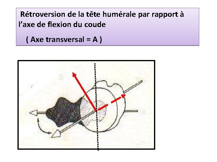 Rétroversion de la tête humérale par rapport à l'axe de flexion du coude (
