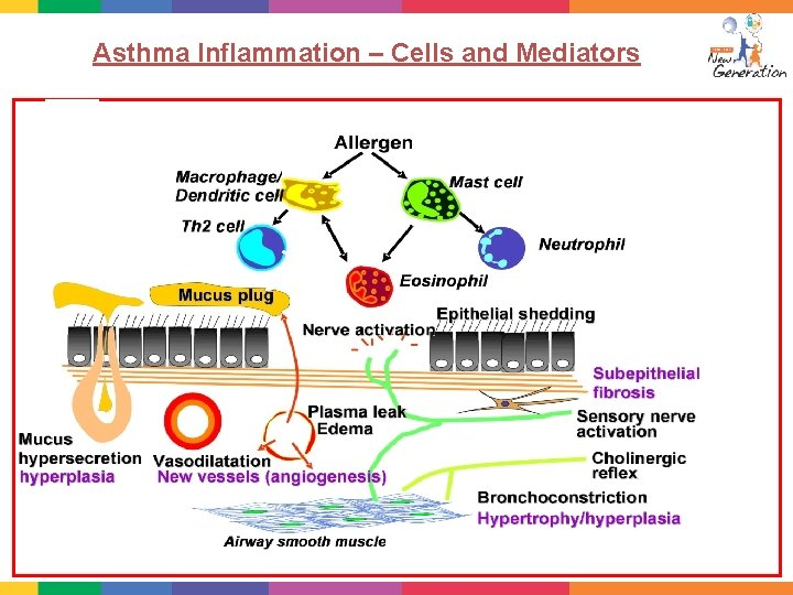 Asthma Inflammation – Cells and Mediators