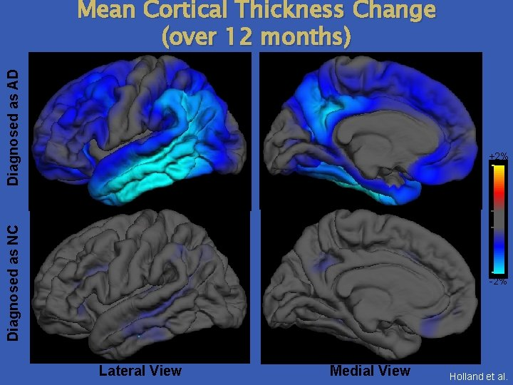 Diagnosed as AD Mean Cortical Thickness Change (over 12 months) Diagnosed as NC +2%