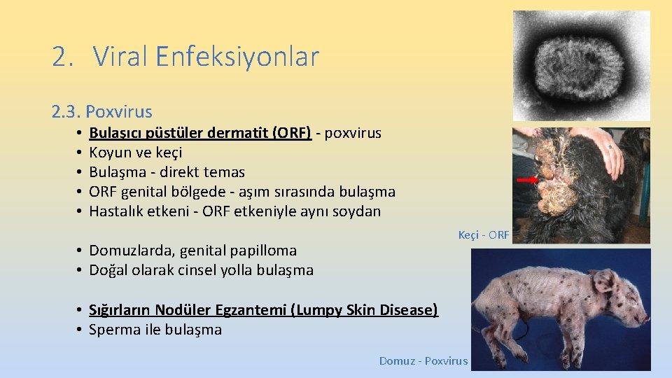 2. Viral Enfeksiyonlar 2. 3. Poxvirus • • • Bulaşıcı püstüler dermatit (ORF) -