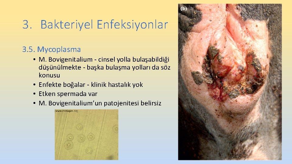 3. Bakteriyel Enfeksiyonlar 3. 5. Mycoplasma • M. Bovigenitalium - cinsel yolla bulaşabildiği düşünülmekte