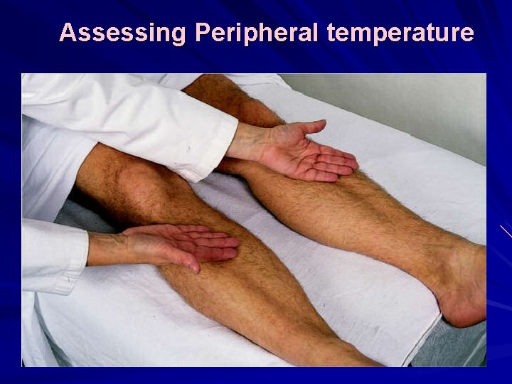 Assessing Peripheral temperature