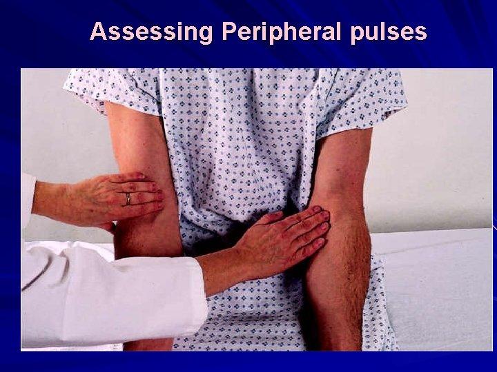 Assessing Peripheral pulses