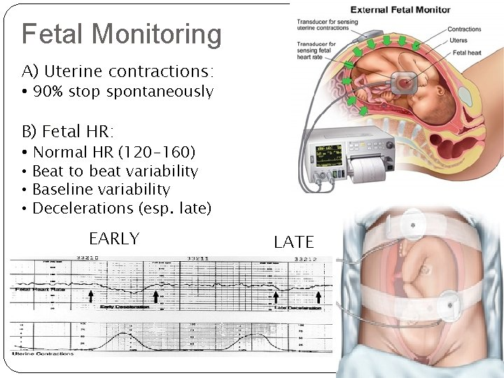 Fetal Monitoring A) Uterine contractions: • 90% stop spontaneously B) Fetal HR: • Normal