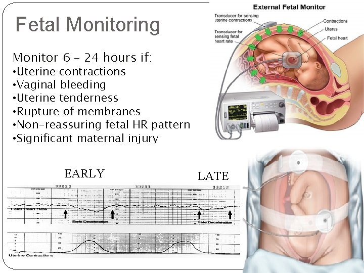 Fetal Monitoring Monitor 6 – 24 hours if: • Uterine contractions • Vaginal bleeding