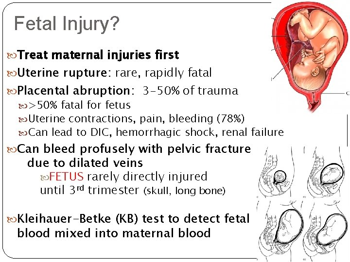 Fetal Injury? Treat maternal injuries first Uterine rupture: rupture rare, rapidly fatal Placental abruption: