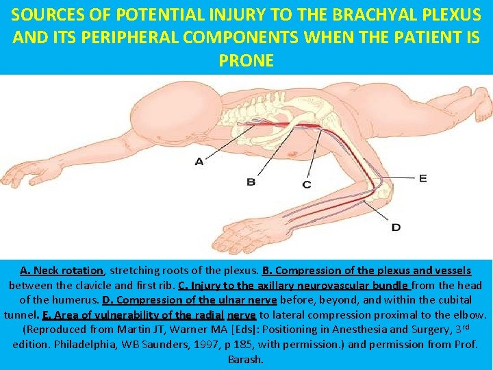 SOURCES OF POTENTIAL INJURY TO THE BRACHYAL PLEXUS AND ITS PERIPHERAL COMPONENTS WHEN THE