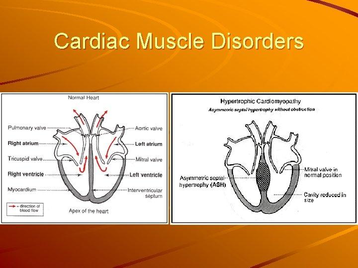 Cardiac Muscle Disorders