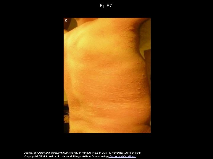 Fig E 7 Journal of Allergy and Clinical Immunology 2014 134108 -115. e 11