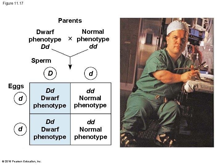 Figure 11. 17 Parents Dwarf phenotype Dd Normal phenotype dd Sperm D d d