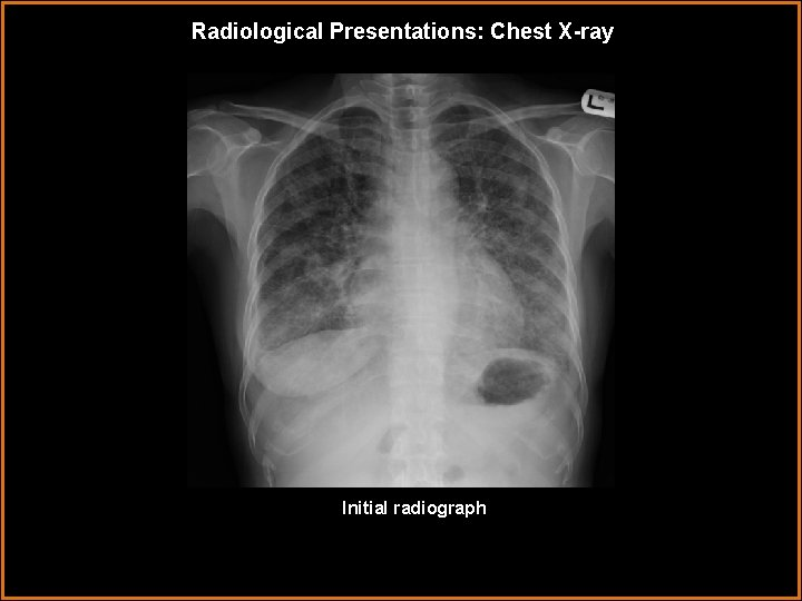 Radiological Presentations: Chest X-ray Initial radiograph