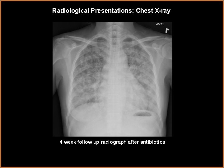 Radiological Presentations: Chest X-ray 4 week follow up radiograph after antibiotics