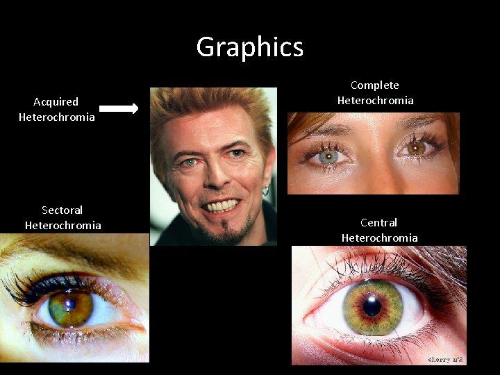 Graphics Acquired Heterochromia Sectoral Heterochromia Complete Heterochromia Central Heterochromia