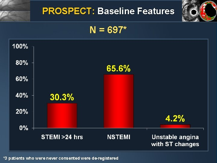 PROSPECT: Baseline Features N = 697* *3 patients who were never consented were de-registered