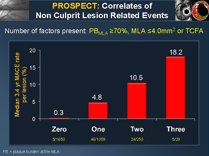 PROSPECT: Correlates of Non Culprit Lesion Related Events Median 3. 4 yr MACE rate