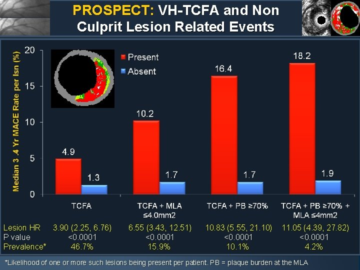 PROSPECT: VH-TCFA and Non Culprit Lesion Related Events Lesion HR 3. 90 (2. 25,