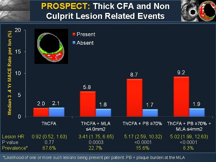PROSPECT: Thick CFA and Non Culprit Lesion Related Events Lesion HR 0. 92 (0.
