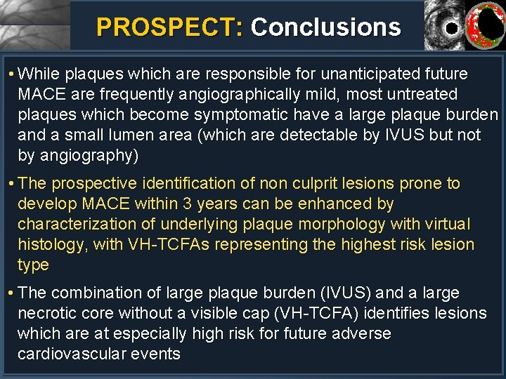 PROSPECT: Conclusions • While plaques which are responsible for unanticipated future MACE are frequently