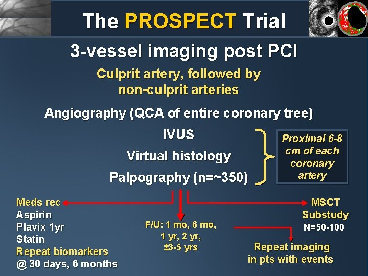The PROSPECT Trial 3 -vessel imaging post PCI Culprit artery, followed by non-culprit arteries
