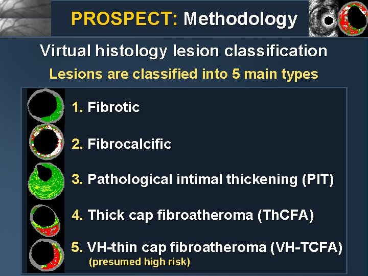 PROSPECT: Methodology Virtual histology lesion classification Lesions are classified into 5 main types 1.