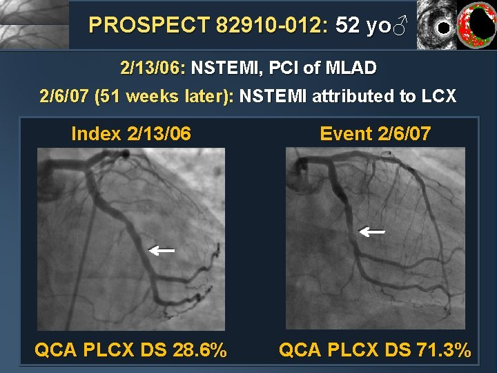 PROSPECT 82910 -012: 52 yo♂ 2/13/06: NSTEMI, PCI of MLAD 2/6/07 (51 weeks later):