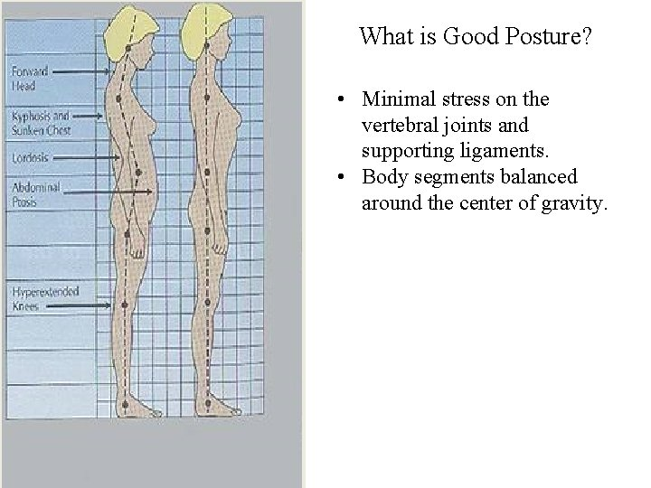 What is Good Posture? • Minimal stress on the vertebral joints and supporting ligaments.