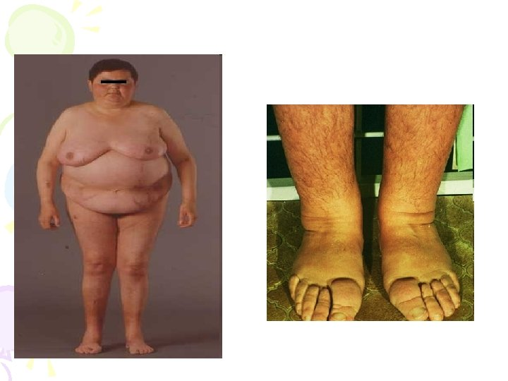 poate boala lui cushing provoacă pierderea în greutate