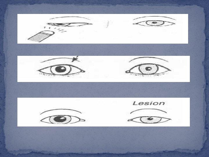 dacă miopia poate dezvolta hipermetropie refacerea vederii conform sistemului yoga
