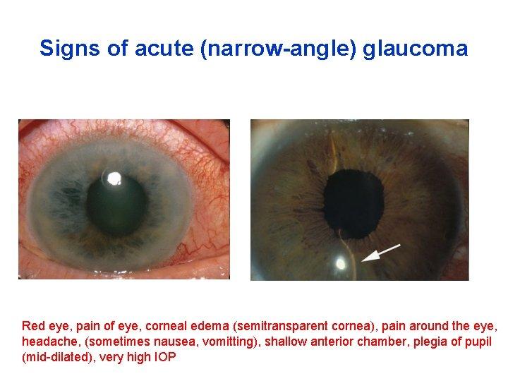 Signs of acute (narrow-angle) glaucoma Red eye, pain of eye, corneal edema (semitransparent cornea),