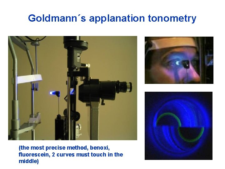 Goldmann´s applanation tonometry (the most precise method, benoxi, fluorescein, 2 curves must touch in