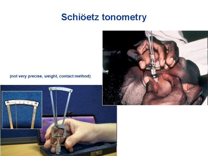 Schiöetz tonometry