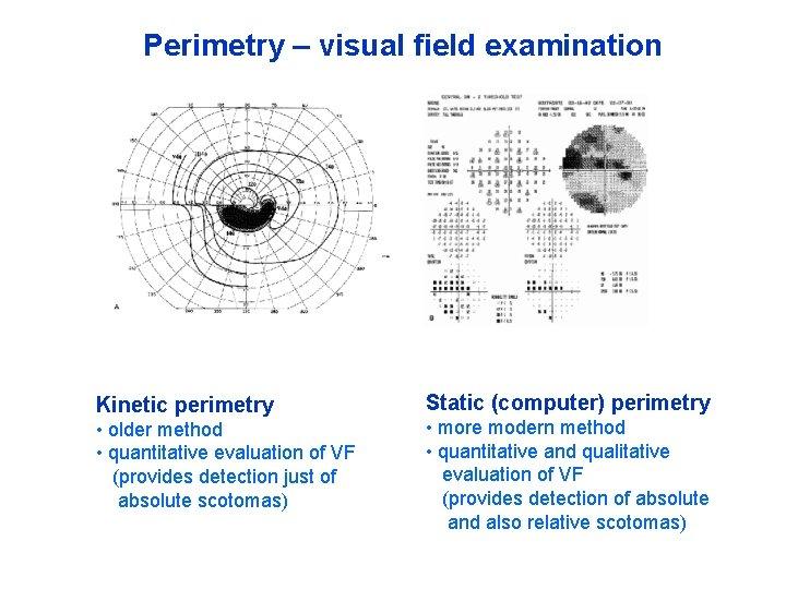 Perimetry – visual field examination Kinetic perimetry • older method • quantitative evaluation of