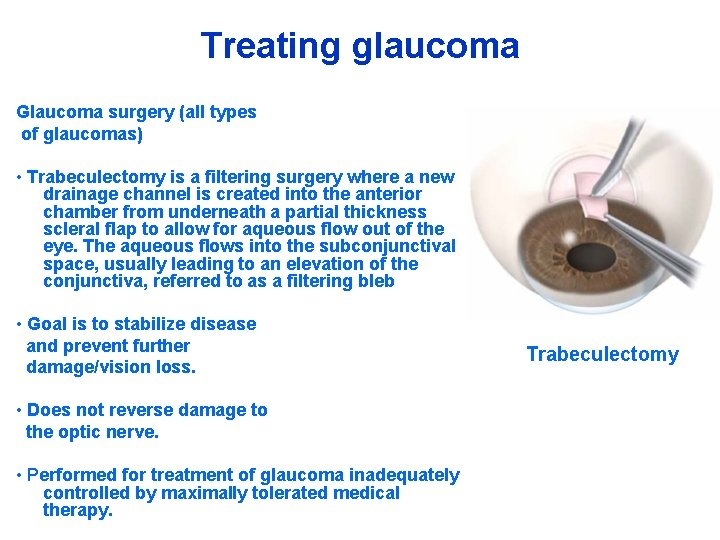 Treating glaucoma Glaucoma surgery (all types of glaucomas) • Trabeculectomy is a filtering surgery