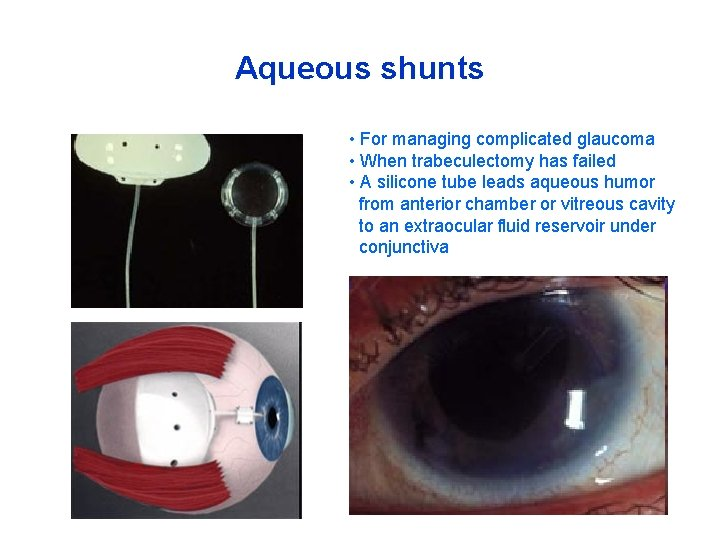 Aqueous shunts • For managing complicated glaucoma • When trabeculectomy has failed • A