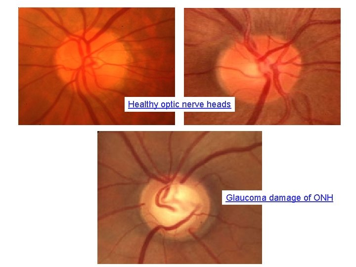 Healthy optic nerve heads Glaucoma damage of ONH