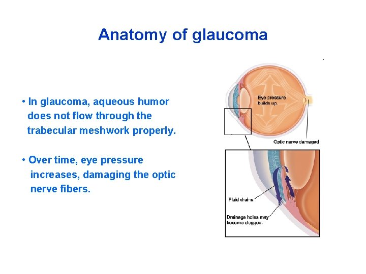 Anatomy of glaucoma • In glaucoma, aqueous humor does not flow through the trabecular