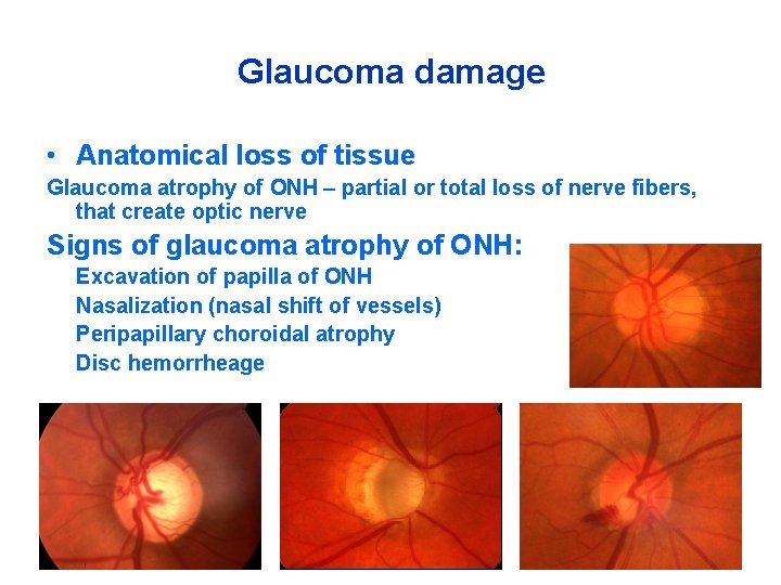 Glaucoma damage • Anatomical loss of tissue Glaucoma atrophy of ONH – partial or