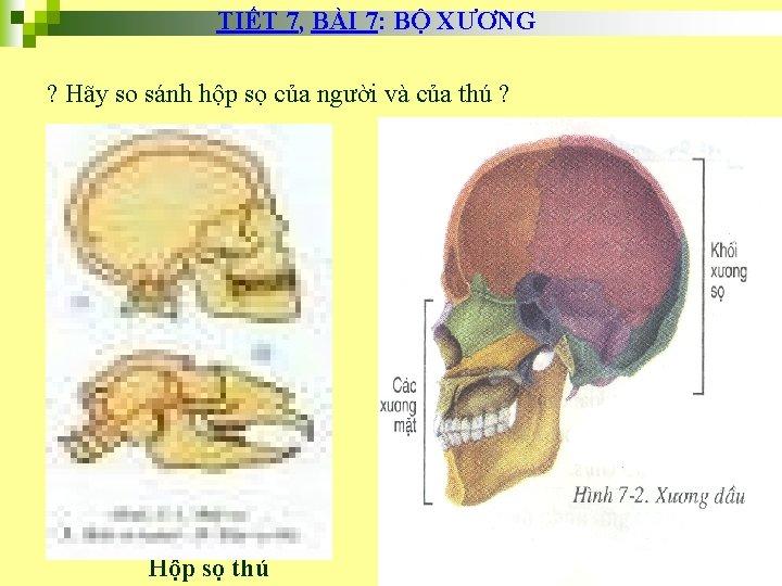 TIẾT 7, BÀI 7: BỘ XƯƠNG ? Hãy so sánh hộp sọ của người